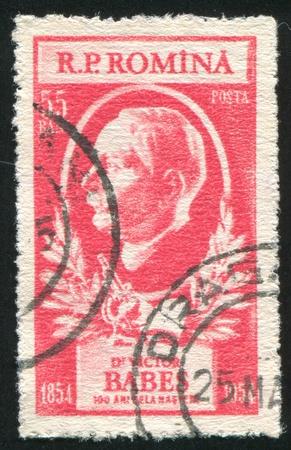 babes: ROMANIA - CIRCA 1954: stamp printed by Romania, shows Victor Babes, circa 1954 Editorial
