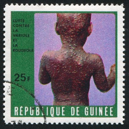 desease: GUINEA CIRCA 1970: stamp printed by Guinea, shows Sick child, circa 1970
