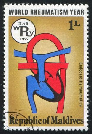 right ventricle: MALDIVE ISLANDS CIRCA 1978: stamp printed by Maldive Islands, shows Rheumatic Heart, circa 1978
