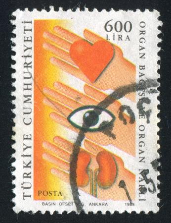 donacion de organos: TURQU�A-CIRCA 1988: sello impreso por Turqu�a, muestra la donaci�n de �rganos, alrededor del a�o 1988
