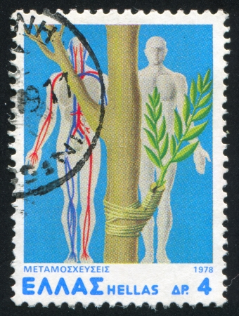 "transplants: GREECE - CIRCA1978: stamp printed by Greece, shows ""Transplants"", Advancements in organ transplants, circa 1978"