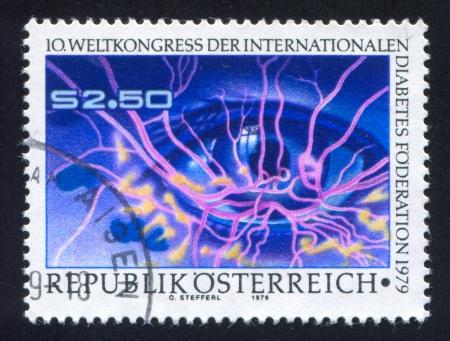 vasos sanguineos: AUSTRIA - CIRCA 1979: sello impreso por Alemania, Austria, muestra ojo enfermo y los vasos sangu�neos, alrededor de 1979 Editorial
