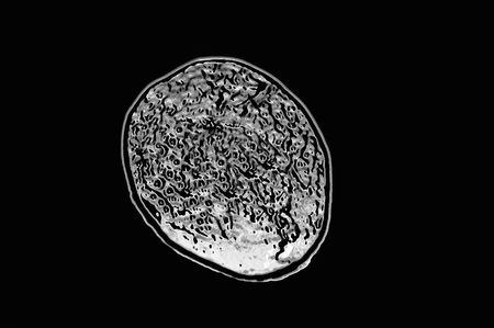 brain scan on black background