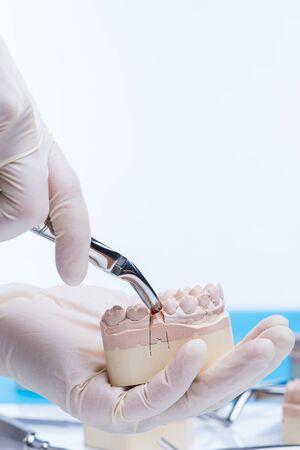 cavity braces: Doctor examinates the teeth mold Stock Photo