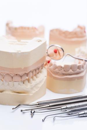 amalgam: Teeth molds with basic dental tools on a bright white surface