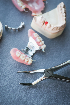 artificial teeth: Artificial replacement teeth with forceps on a dark surface
