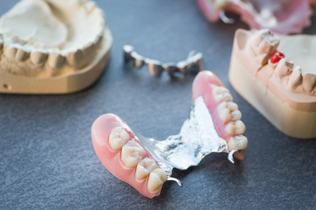 artificial teeth: Artificial replacement teeth on a dark surface Stock Photo