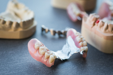 replacement: Artificial replacement teeth on a dark surface Stock Photo