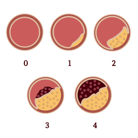 Stage of atherosclerosis of arteries. Adjournment the cholesterol plaques in arteries. Ulceration of atherosclerotic plaque with subsequent development of thrombosis, blockage of artery. Illustration