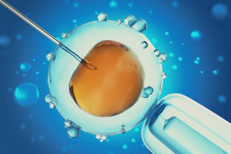 Illustration 3D der künstlichen Befruchtung oder In-vitro-Befruchtung einer Eizelle, Eizelle oder Zygote. Konzept, wissenschaftliches Experiment Standard-Bild - 76682858