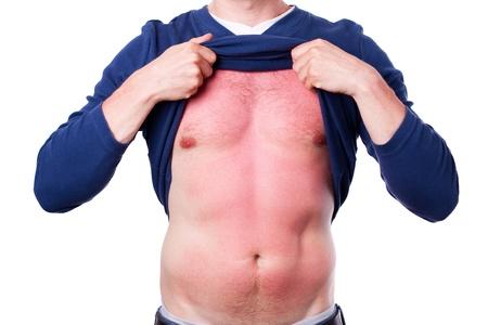 Homme avec un coup de soleil isol� sur fond blanc