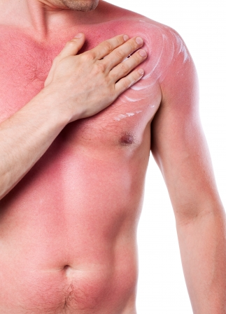 sunburn: Man with a sunburn isolated on white background Stock Photo