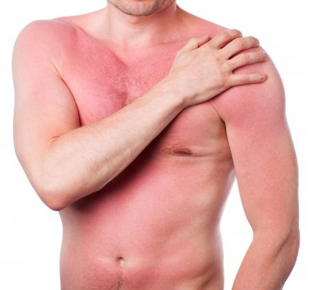 Homme avec un coup de soleil isol? sur fond blanc
