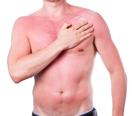 skin cancer: Man with a sunburn isolated on white background Stock Photo