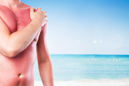 Man with a sunburn isolated on white background photo