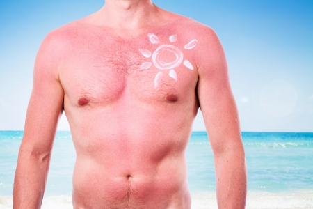 burn: Man with a sunburn isolated on white background Stock Photo