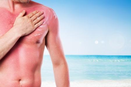 quemadura: Hombre con una quemadura de sol aisladas sobre fondo blanco