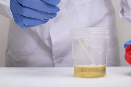 A doctor, lab technician in blue gloves holding urine sample in a plastic container, urinalysis and filling the pipette with urine for testing, medical check-up concept. 写真素材