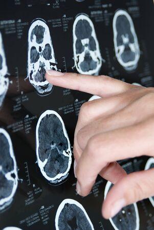 hemorragia: imagen de rayos X Foto de archivo