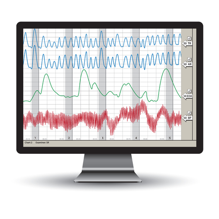 Closeup of a polygraph test chart. Vector illustration Illustration
