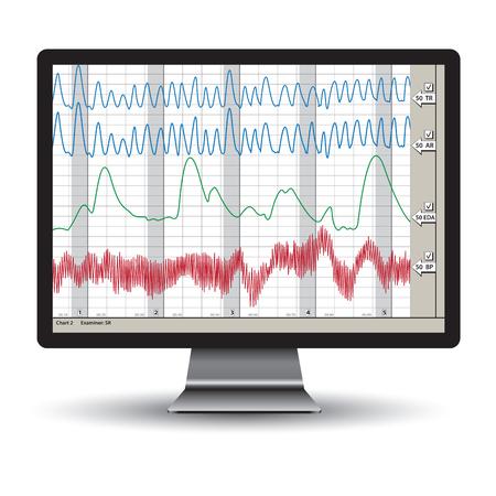 Zbliżenie na wykresie badania poligraficzna. ilustracji wektorowych