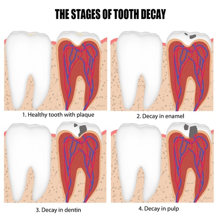 oral hygiene: Diagram of tooth with caries stages (for basic medical education, for clinics &amp, Schools), illustration Illustration