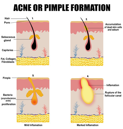 skin infections: Formation of skin acne or pimple (for basic medical education, for clinics & Schools), vector illustration