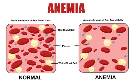 iron: Anemia diagram, vector illustration (for basic medical education, for clinics & Schools)