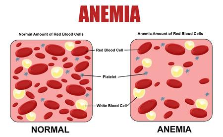 blanco: diagrama de la anemia, la ilustración del vector (para la educación médica básica, para las clínicas y escuelas)