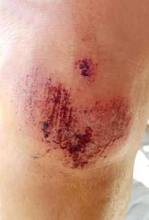 laceration: Close up on an bleeding scraped human knee after run accident Stock Photo