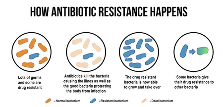 How antibiotic resistance happens diagram, vector illustration (for basic medical education, for clinics & Schools)