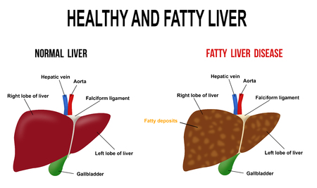 Healthy and fatty liver, vector illustration (for basic medical education, for clinics Stock Illustratie
