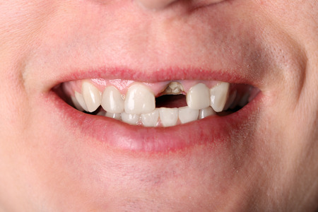no teeth smile: Smile of man without one front tooth Stock Photo