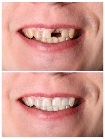 Incisive herstel van de tanden voor en na behandeling