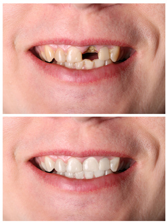 denture: Incisive tooth restoration before and after treatment