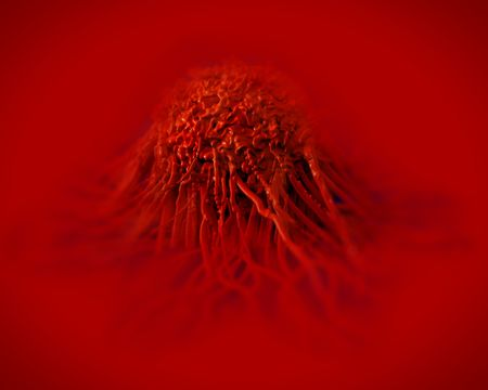 metastasis: Cancer cell Stock Photo