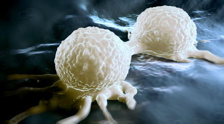 human cancer: Dividing breast cancer cell, showing its uneven surface & cytoplasmic projections. It is in the telophase stage of cell division (mitosis). In this last stage of mitosis, the chromosomes have already been duplicated and distributed to each daughter cell.