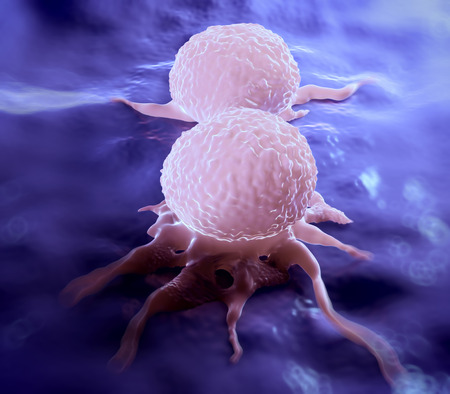 Dividing breast cancer cell, showing its uneven surface & cytoplasmic projections. It is in the telophase stage of cell division (mitosis). In this last stage of mitosis, the chromosomes have already been duplicated and distributed to each daughter cell. Imagens - 41102163
