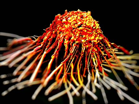 microscopic photos: cancer cell or tumor illustration in high details