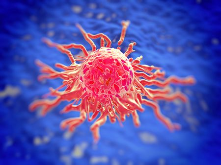 cancerous: cancer cell or tumor illustration in high details