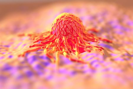 pseudopodium: cancer cell or tumor illustration in high details