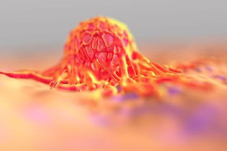 cytology: cancer cell or tumor illustration in high details