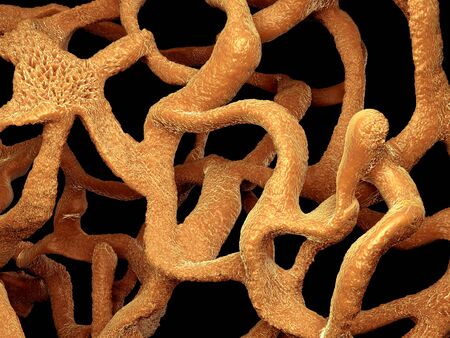 disease structure: Osteoporotic bone , unhealthy bone structure close-up view Stock Photo