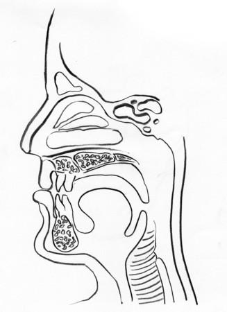 dessin au trait: Haute sch�ma d'encombrement des voies respiratoires dans un fond blanc