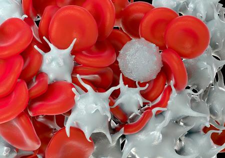 globuli bianchi: globuli rossi, piastrine attivate e globuli bianchi foto microscopiche Archivio Fotografico