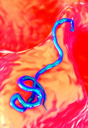 biomedical: ebola virus