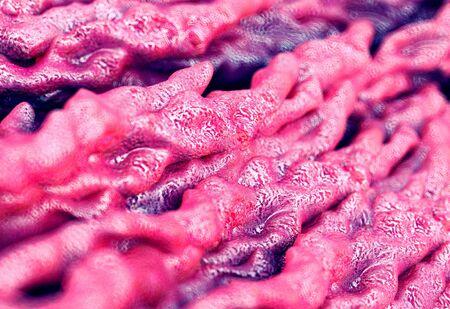 Tuberculosis bacteria