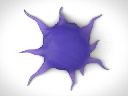 3d rendering - brain cancer cells