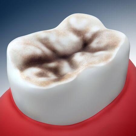 3d rendering - decay in molar teeth