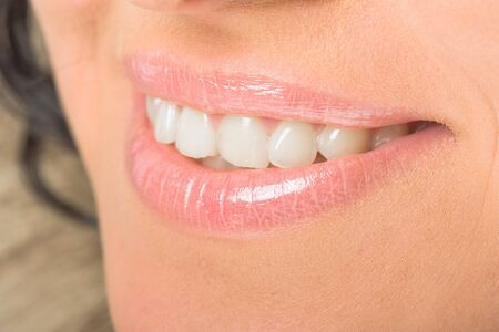 Beauty woman smile, white fresh teeth and lips,dentist photo